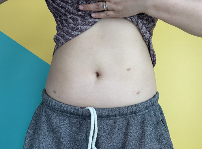 Infertility Awareness Week - Canada - Endometriosis Surgery Scars